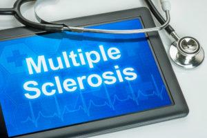 Using Nuedexta to treat MS
